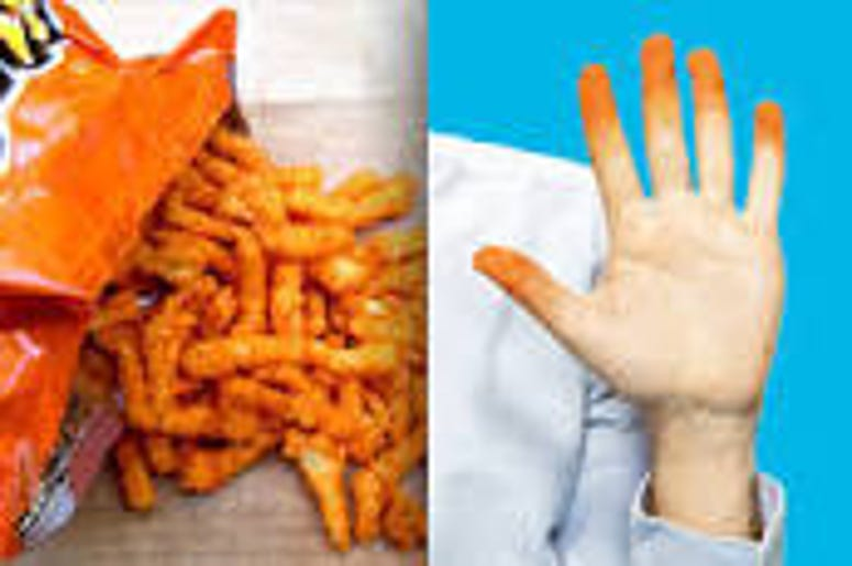 Cheetos Has name For Dusty Cheese Residue On Hands