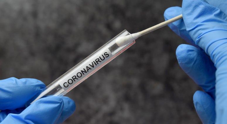 Coronavirus Test Tube - File Photo